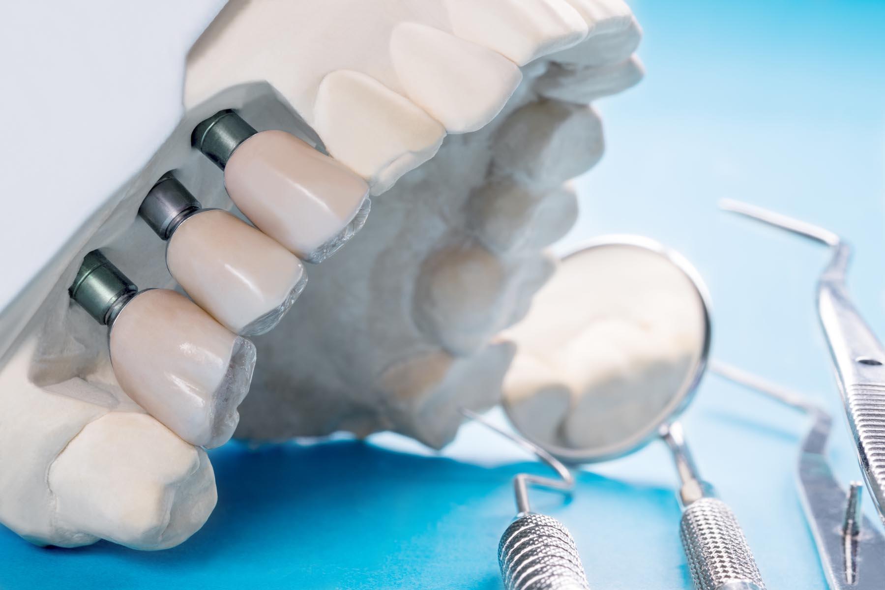 Sparen beim Zahnersatz