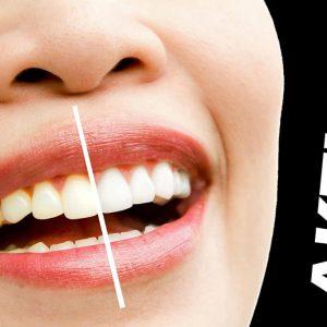 Zahnreinigung zum Black-Friday-Preis